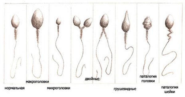 Патологии сперматозоида причины и лечение